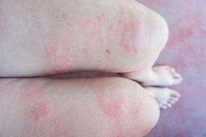 Hazards of Bed Bug Infestation