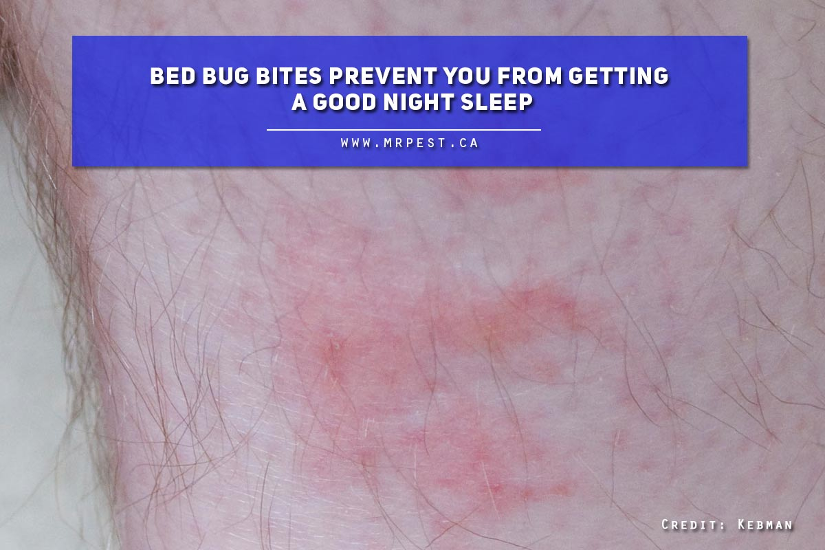 Bed bug bites prevent you from getting a good night sleep