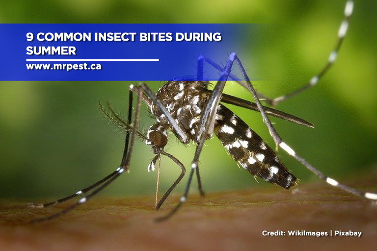 9 Common Insect Bites During Summer