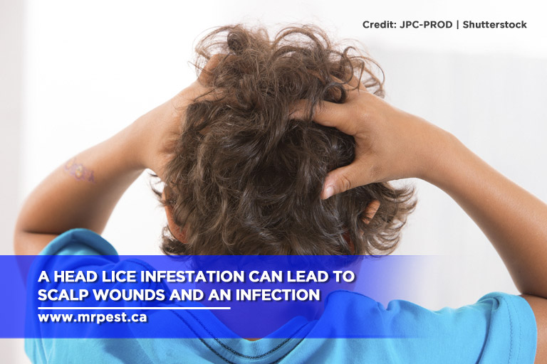 A head lice infestation can lead to scalp wounds and an infection