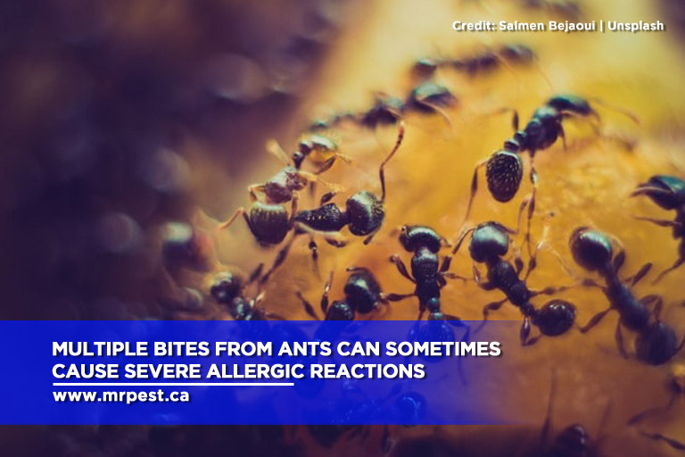 Multiple bites from ants can sometimes cause severe allergic reactions
